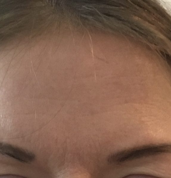 anti wrinkle injections leeds