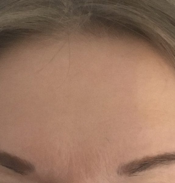 anti wrinkle injections yorkshire