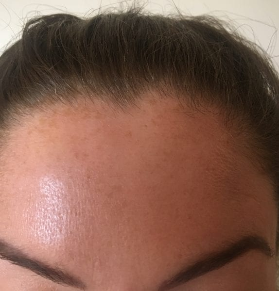 anti wrinkle injections Garforth